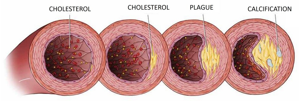 Erectile Disfunction CAUSED BY CHOLESTEROL