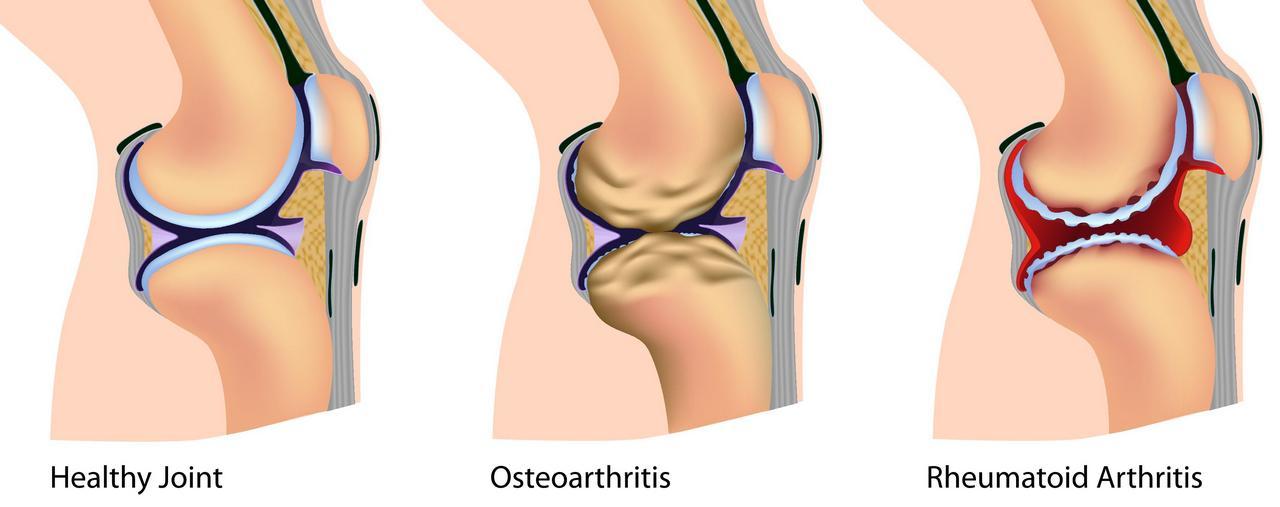 ARTHRITIS, OSTEOARTHRITIS, RHEUMATOID ARTHRITIS, GOUT, LUPUS