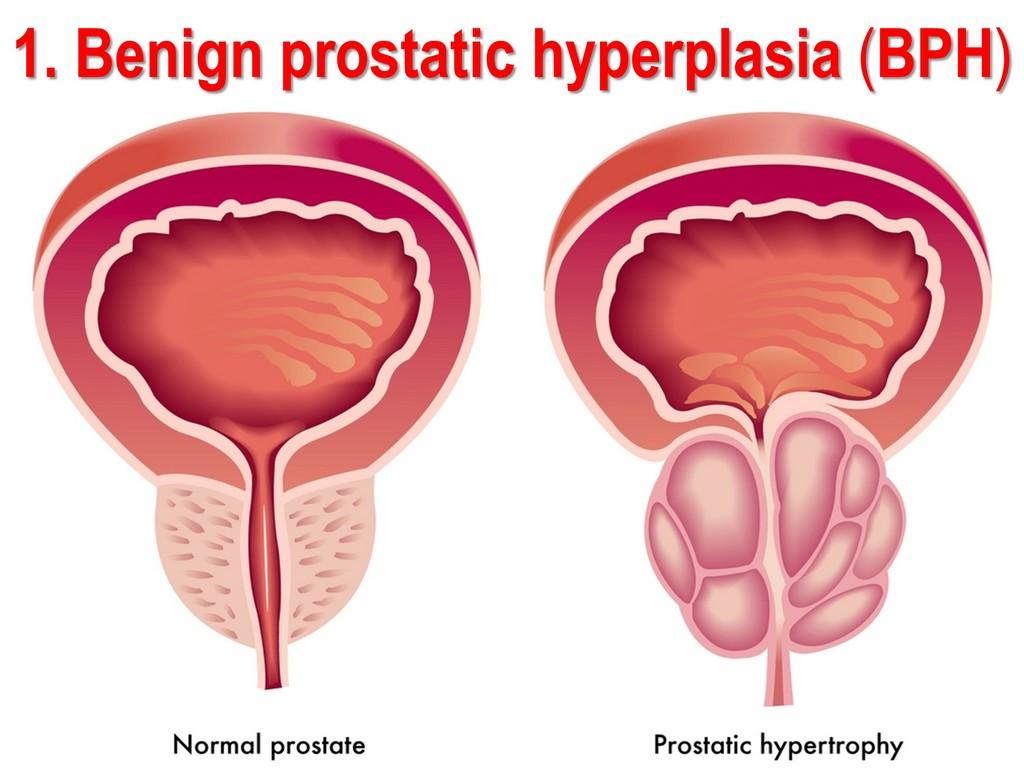 nacktbilder sex masturbation prostata