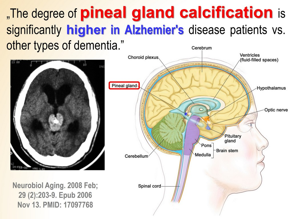 Alzheimer's calcified pineal glands Fluoride