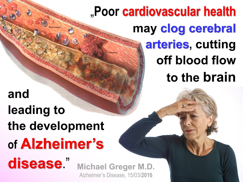 Alzheimer's clogged cerebral arteries