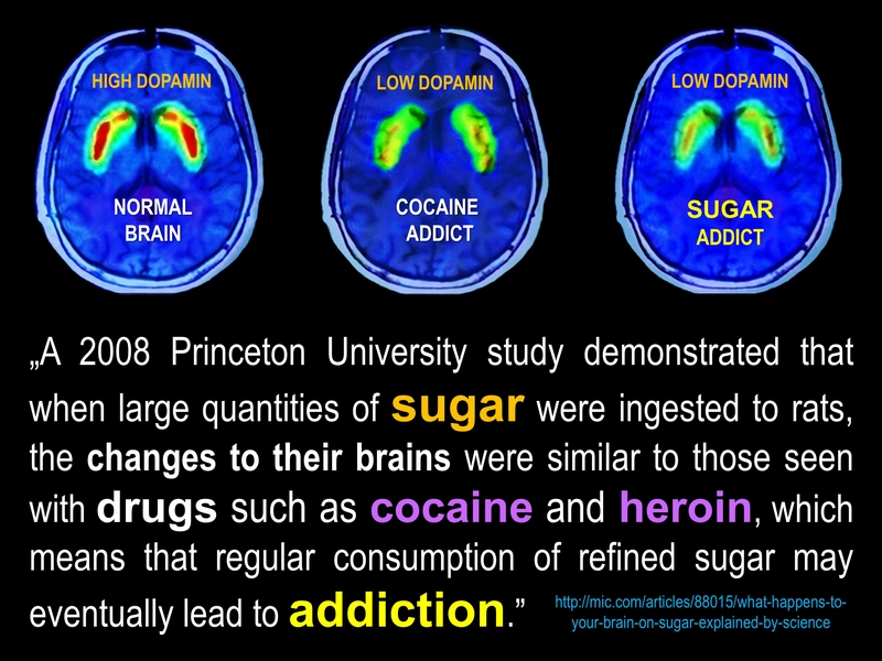 sugar as addictive as heroin and cocaine
