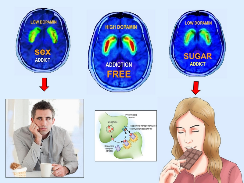 sugar very addictive and lowers dopamine