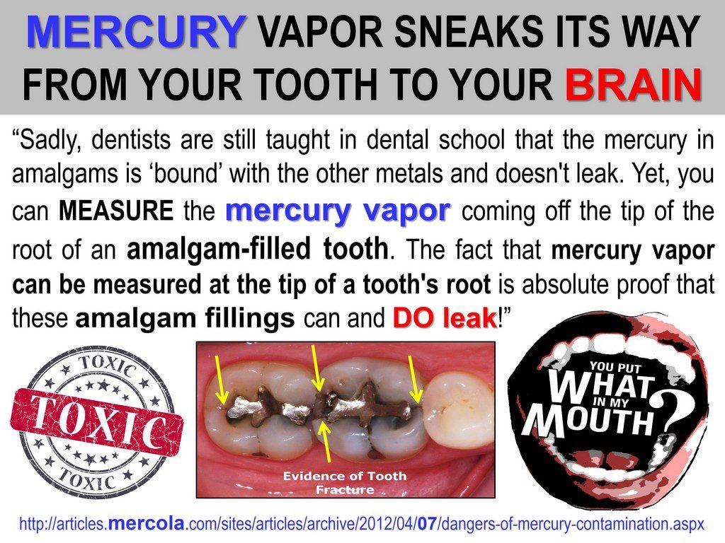 Alzheimer's mercury