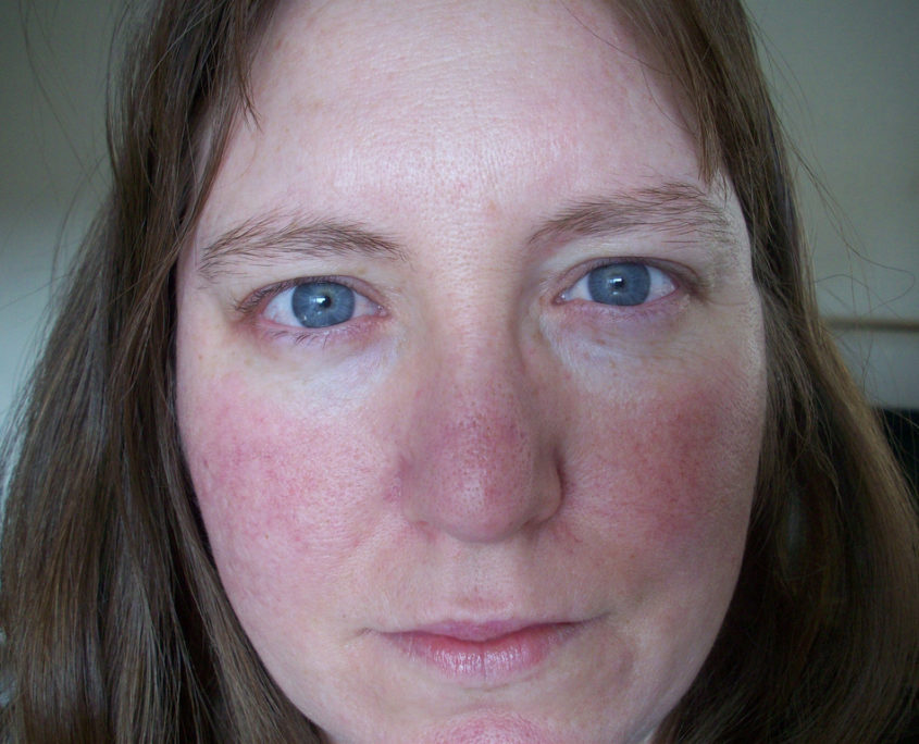 Facial Redness (Erythema), Spider Veins & Broken capillaries