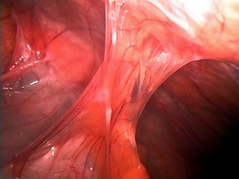 Abdominal Adhesions, Surgical Adhesions, Scar Tissue