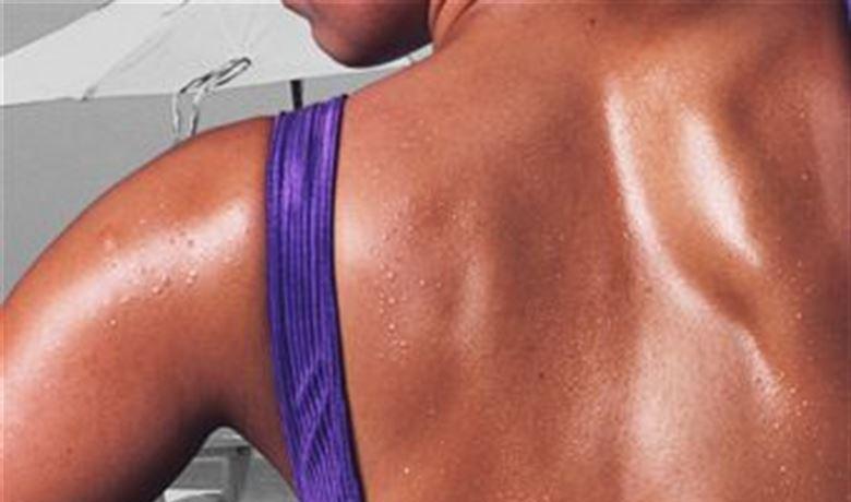 Vitamin D3 Reduces Skin Damage After Sunburn