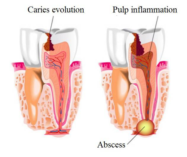Toothache, Tooth Decay, Tooth Inflammation, & Pain after Extraction