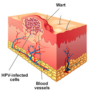 A wart filled with HPV