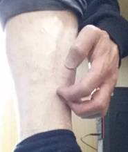 ITCHY SKIN ON LOWER LEGS