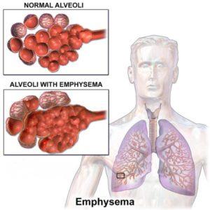 EMPHYSEMA & COPD (CHRONIC OBSTRUCTIVE PULMONARY DISEASE)