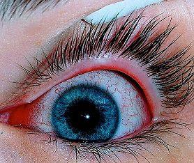 Pink Eye (Conjunctivitis)