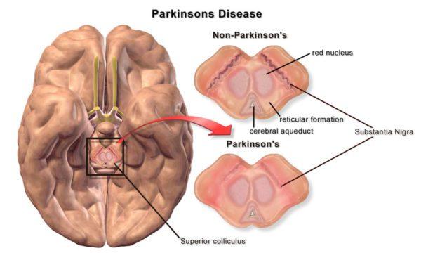 PARKINSON'S DISEASE most effective treatment